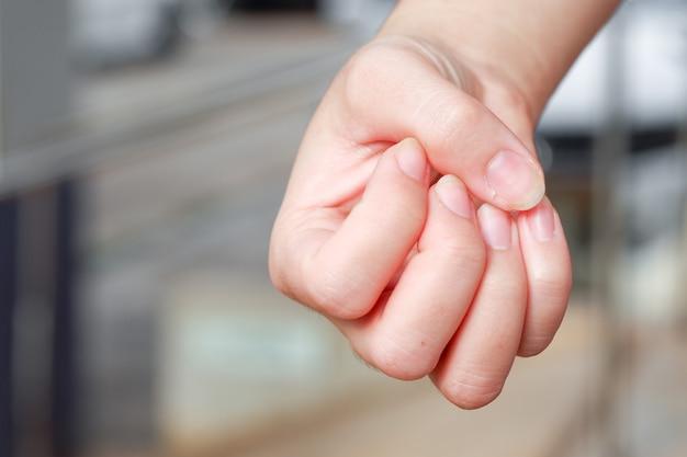 찢어진 코 손톱으로 인한 여성 손의 손톱 질환.