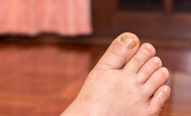 발가락, 건강 및 건강 관리 개념에 손톱 염증