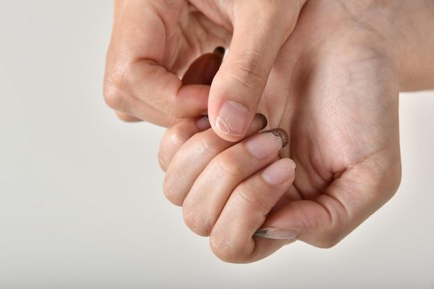 Ногти грибковых и бактериальных инфекций от грязных маникюрных салонных инструментов, отшелушивание и сколы лака для рук, ногти ломкие проблемы.