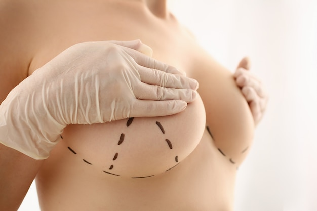 Naked female patient covering nipples with hands