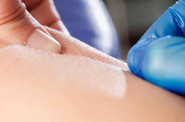 Needle and hands of physiotherapist doing a dry needling.