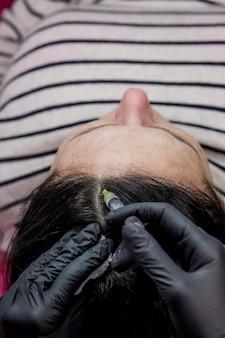 바늘 메조테라피. 미용사는 여자 머리에 주사를 만든다. 머리카락과 성장을 강화하십시오.