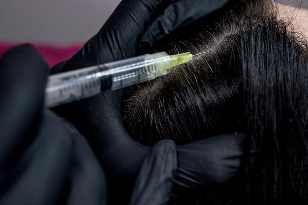 바늘 메조테라피. 미용사는 여자 머리에 주사를 만든다. 모발과 성장을 강화하십시오.