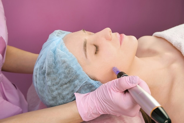 針メソセラピー。美容師は女性の顔に針メソセラピーを行います。マイクロニードリングの若返り治療を受けている美しい女性。ニードルリフティング
