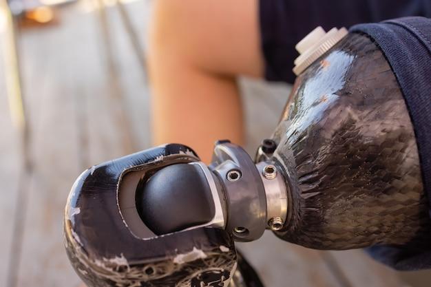 切断患者のための新しいアルミニウム義足。