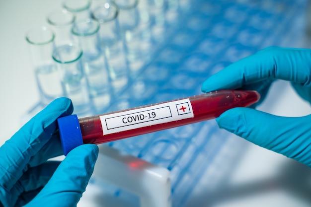 새로운 유행성 코로나 바이러스. 코로나 바이러스 발생. 연구실의 코로나 바이러스 과학자는 바이러스 이름 coronavirus로 혈액 검사를받는 튜브를 들고 있습니다. 백신