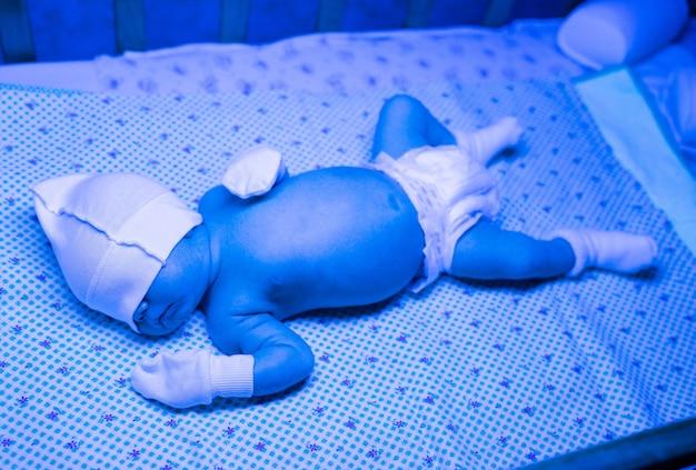 Новорожденный, проходящий курс лечения желтухи ультрафиолетовым светом, имеет высокий уровень билирубина, который находится под синим светом, что снижает уровень желтухи. безопасные медицинские процедуры