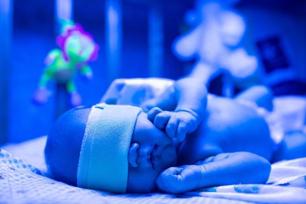 新生児は紫外線下で黄疸の治療を受けており、赤ちゃんは高レベルのビリルビンを持っており、黄疸のレベルを下げるために青い光の下に横たわっています。安全な医療処置