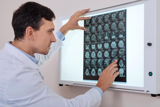 Хороший приятный онколог-мужчина держит рентгенограмму и смотрит на нее, ища проблему