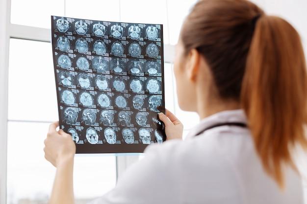 Не упустить ни одной детали. превосходный, умный и сосредоточенный нейрохирург держит рентгеновский снимок против света, работая над диагностикой своей пациентки и следя за тем, чтобы она ничего не упустила.