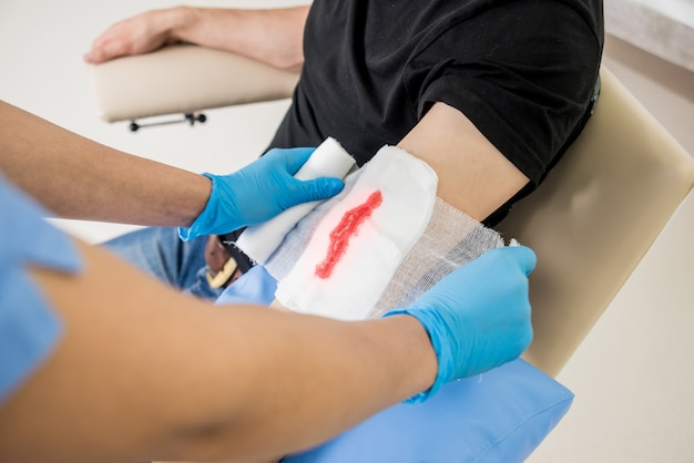Nurse dressing wound for patient's hand with deep skin cutting.