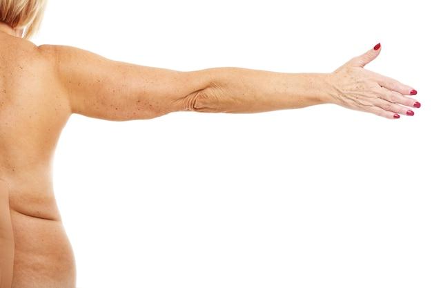 白い背景の上に腕を示す肥満の成人女性