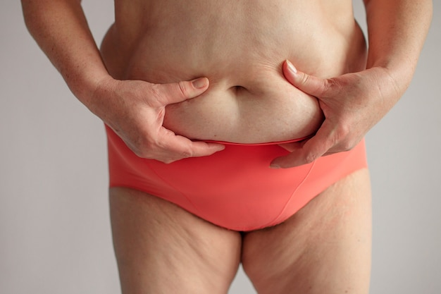 Obese woman with thick buttocks, obese female body