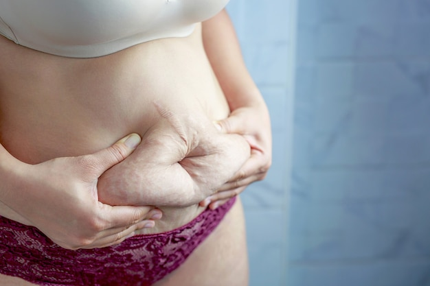 Obese women with belly pattern