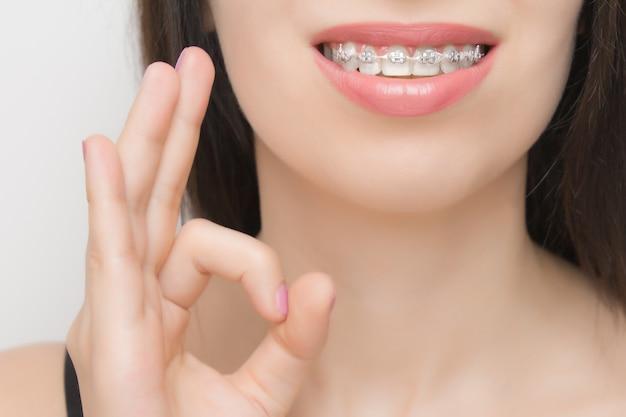 [ok]を示す幸せな女性の口の中の歯ブレース。ホワイトニング後の歯のブラケット。完璧な笑顔を実現する、金属製のネクタイとグレーのゴムまたはゴムバンドを備えた自己結紮ブラケット