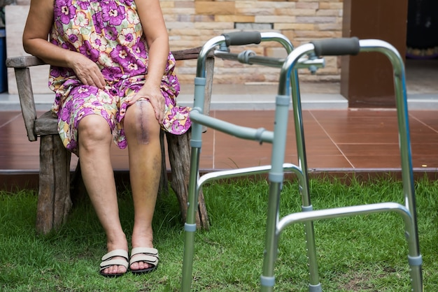 Old woman with leg surgery rest at field