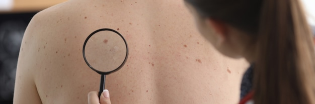 Oncologist holds magnifying glass in hand and examines pigmented nevi on patient's back in clinic