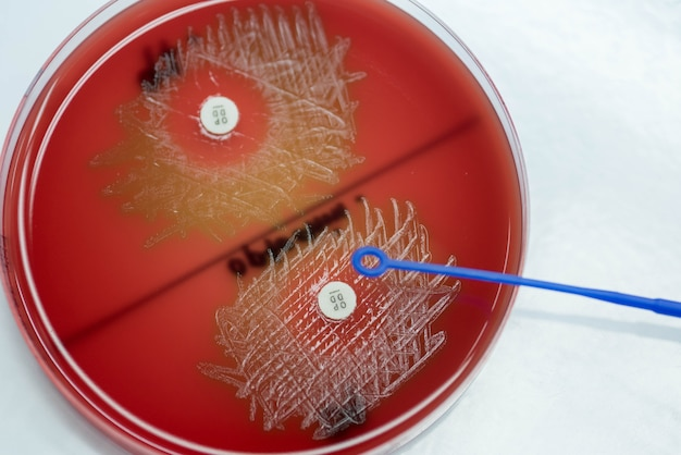Optochin subsensitivity test on blood agar plate contains for streptococcus pneumoniae.