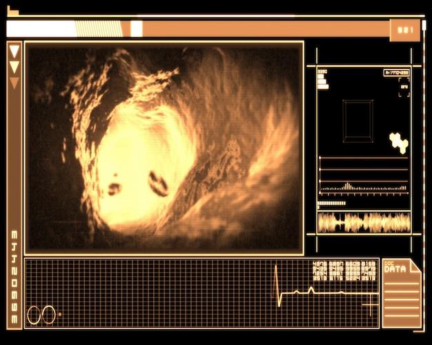Оранжевый и черный цифровой интерфейс, показывающий интерьер вены