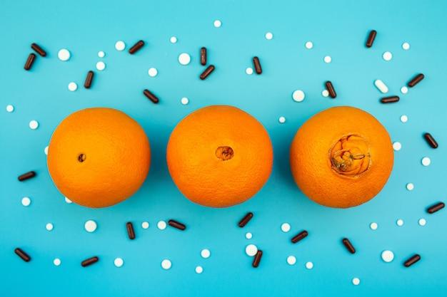 Апельсины с большим пупком, таблетки и капсулы на синем фоне. понятие о разных стадиях геморроя.