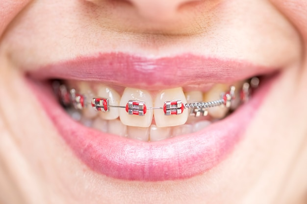 矯正ブレース。歯科医と歯科矯正医の概念。