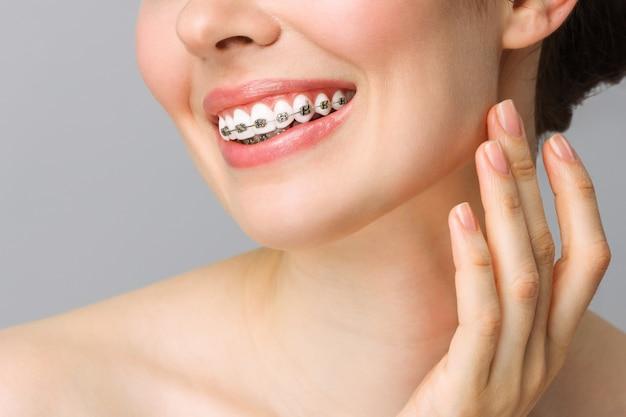 Ортодонтическая стоматологическая помощь концепция здоровая улыбка женщины крупным планом крупным планом керамические и металлические скобки на