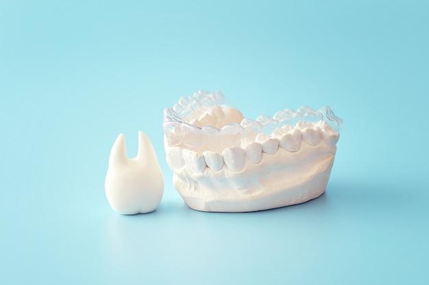 青い背景の歯科矯正歯科テーマ。歯科矯正歯科治療に適用可能な透明な目に見えない歯科用アライナーまたはブレース