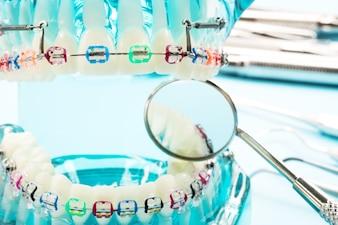 Orthodontic model and dentist tool - demonstration teeth model of varieties of orthodontics