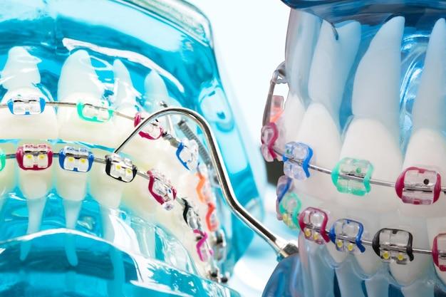 Ортодонтическая модель и инструмент стоматолога - демонстрационная модель зубов разновидностей ортодонтических скоб или скоб.