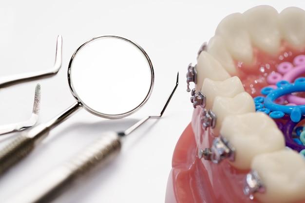 Ортодонтическая модель и инструмент стоматолога - демонстрационная модель зубов из разновидностей ортодонтических скоб или скоб.