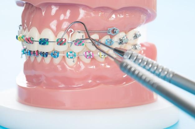 Ортодонтическая модель и стоматологический инструмент - демонстрационная зубная модель разновидностей ортодонтического