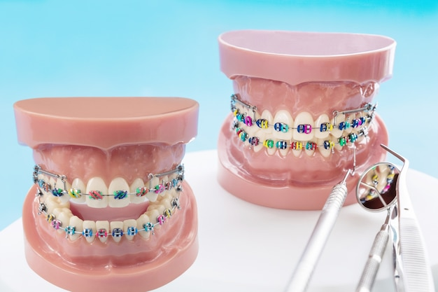 歯科矯正モデルと歯科医のツール