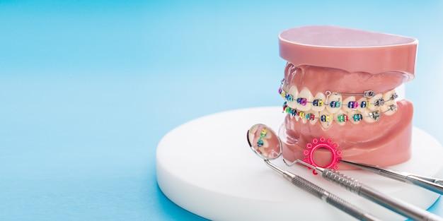Orthodontic model and dentist tool - demonstration teeth model of varieties of orthodontic bracket or brace