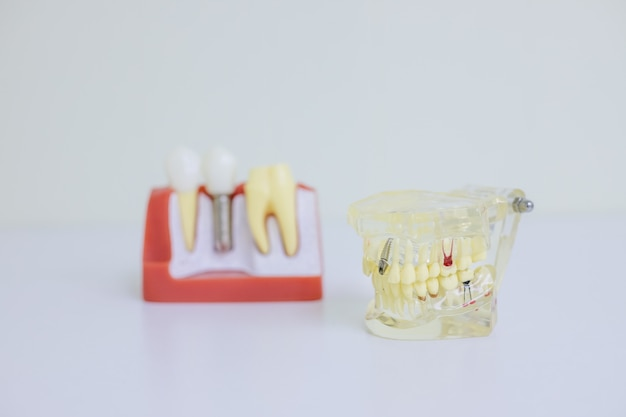 Orthodontic model and dentist tool - demonstration teeth model of varieties of orthodontic bracket or brace.