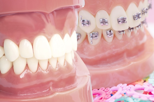 Orthodontic model and dentist tool - demonstration teeth model of varities of orthodontic bracket or brace