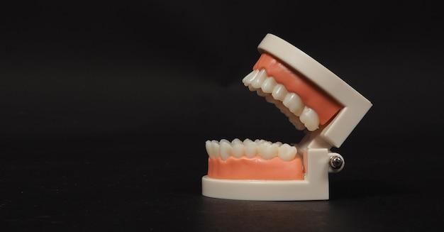Ортодонтическая модель зубов, изолированные на черном фоне. для стоматологической помощи и без людей
