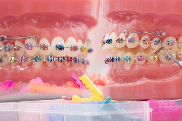 Ортодонтическая модель.