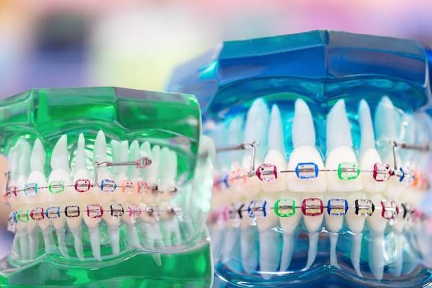 Orthodontic model.