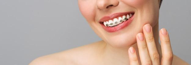 Ортодонтическое лечение крупным планом керамические и металлические скобки на зубах женская улыбка с стоматологическими скобами