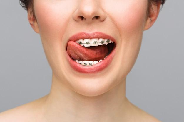 美しい歯の矯正治療歯科治療の概念のクローズアップセラミックと金属のブラケット