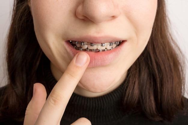 矯正治療。デンタルケアのコンセプト。中かっこで笑顔の10代の少女。歯の金属ブレースのクローズアップ。高品質の写真