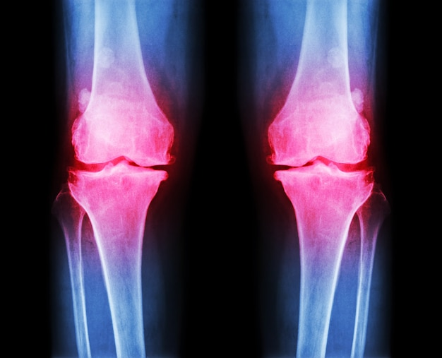 Osteoarthritis knee film x-ray of knee