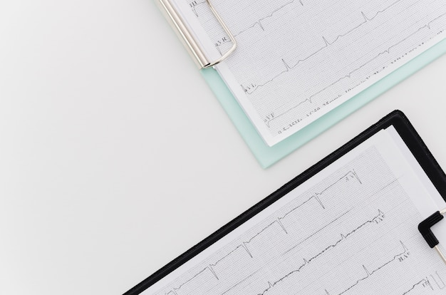 An overhead view of ecg medical report on blue and black clipboard on white background