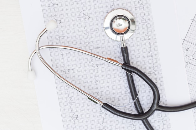An overhead view of stethoscope on ecg medical report