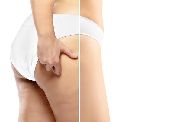 Полная женщина с жирными ногами целлюлита и ожирением ягодиц женского тела в белом нижнем белье