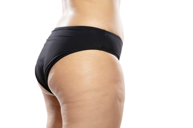 Overweight woman with fat cellulite legs and buttocks, obesity female body in black underwear