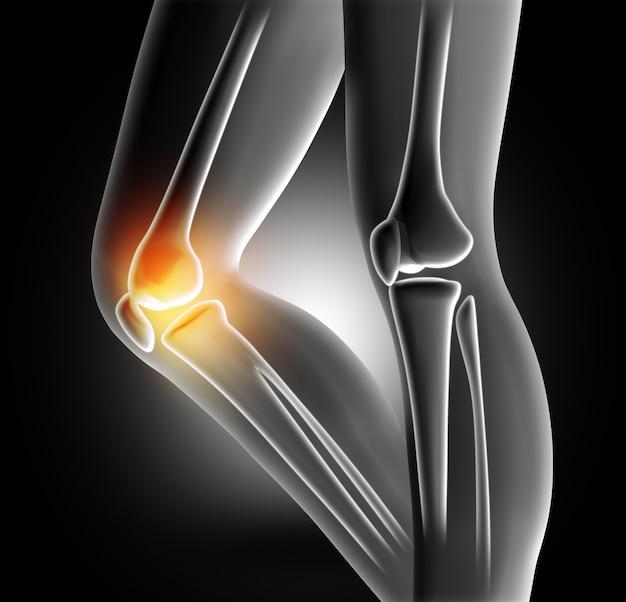 무릎 관절의 통증