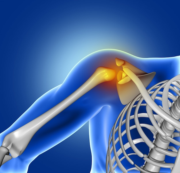 Pain of shoulder joint