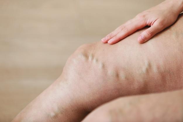 활동적인 여성의 다리에 있는 고통스러운 정맥류와 거미 정맥은 스스로 고통을 극복하는 데 도움을 줍니다. 혈관 질환, 정맥류 문제, 활동적인 삶의 개념.