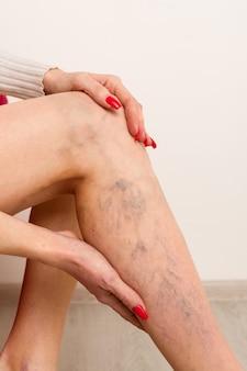 Болезненное варикозное расширение вен и сосудистые звездочки на женских ногах. женщина массирует усталую ногу в офисе